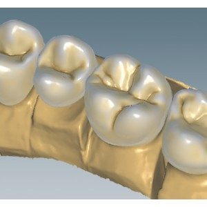 Ceramill Mind - software CAD (Exocad)